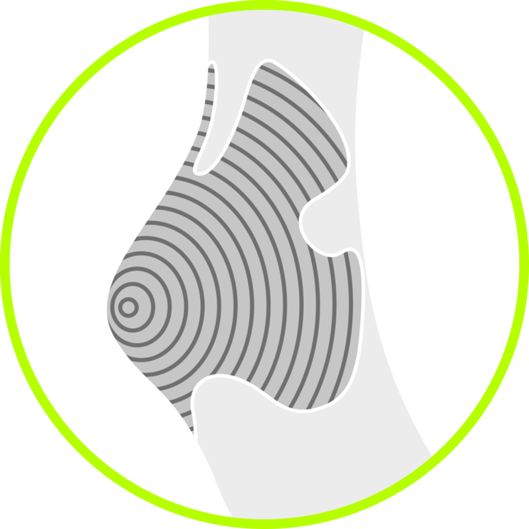 Heel Protection Image